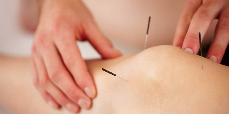 Acupuncture Treatment in Mumbai