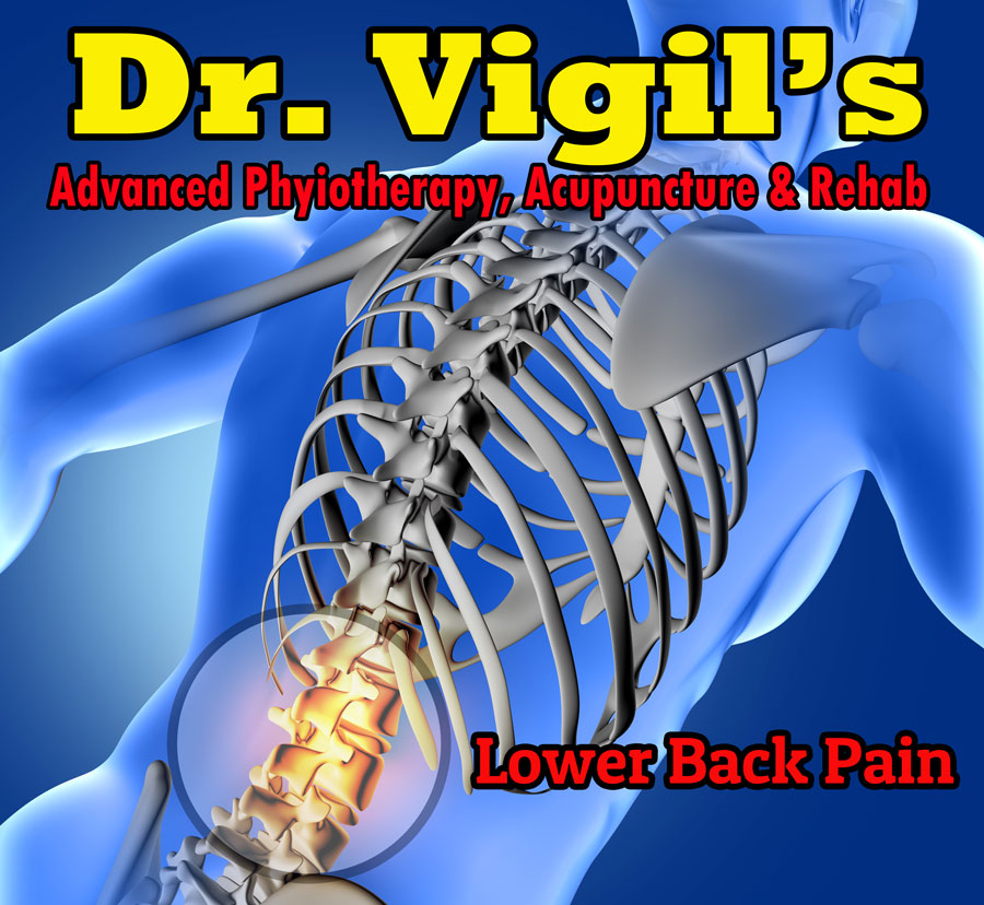 Dr-Vigil-Advanced-Physiotherapy-Lower-Back-Pain-Treatment-Cause